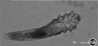 ▲显微镜下的蠕形螨